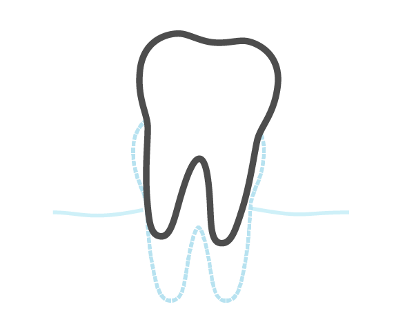 Oral Surgery and Extraction@2x